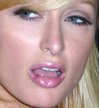 Paris-Hilton-Cold-Sore